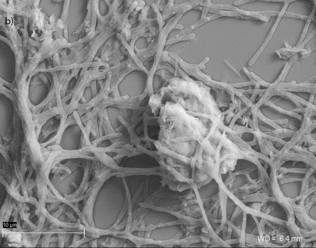 Ryc. 5 Mikrofotografia SEM, Laboratorium Geomikrobiologiczne UW: b) agregaty preparatu BX10 z przylegającymi komórkami promieniowców